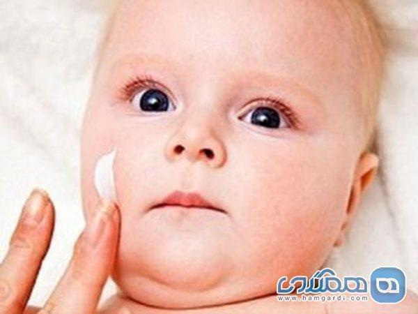 خشکی پوست بچه ها را در زمستان جدی بگیرید