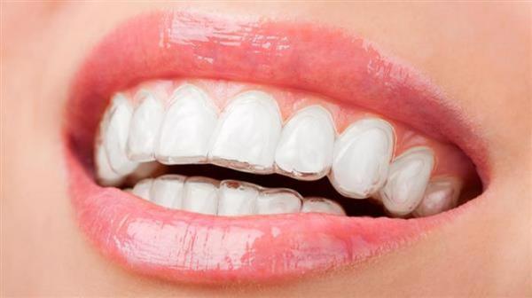 ارتودنسی نامرئی؛ گزینه ای پر هوادار برای لبخندی زیبا